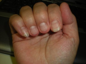 short nails, finger nail injuries